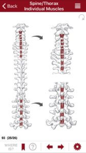 Illustration of the Back Extensor (Interspinalis Erector Spinae Group)