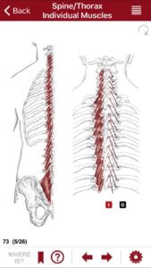 Illustration of the Back Extensor (Multifidi Erector Spinae Group)